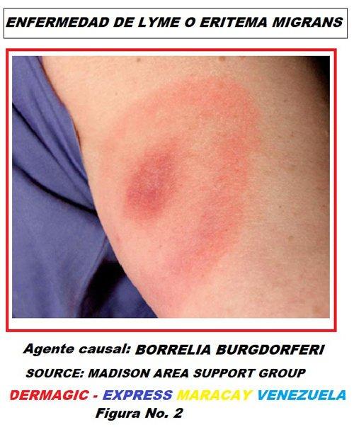 enfermedad-de-Lyme-Borrelia-burgdorferi