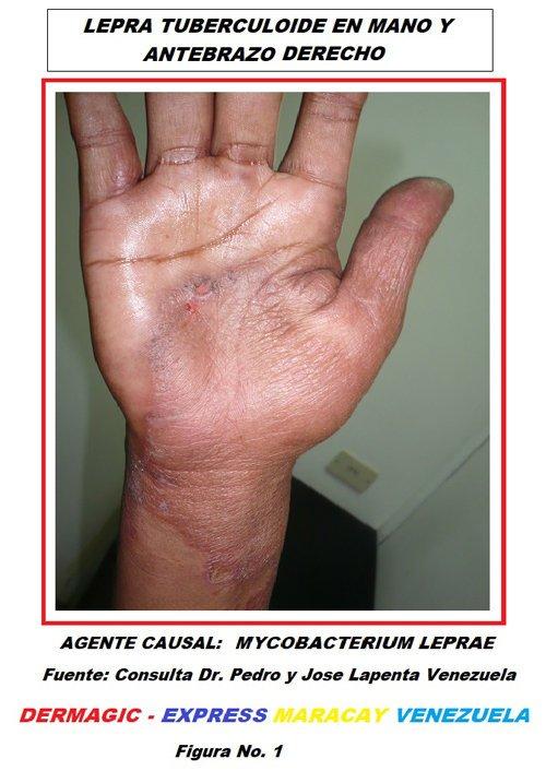 lepra-tuberculoide-mycobacterium-leprae