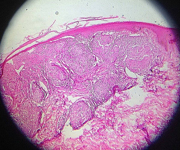 lepra-tuberculoide-biopsia