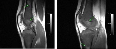 artritis-leucemia-linfoblastica-aguda
