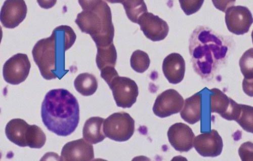eritroblasto-neutrofilo-segmentado
