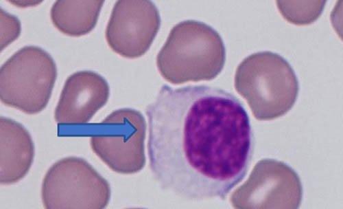linfocito-activado
