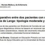 sindrome-de-cornelia-de-lange-grave-moderado-1-pdf