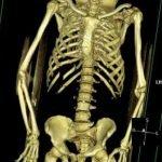 virtopsia-imagenes-post-mortem-radiologia-forense