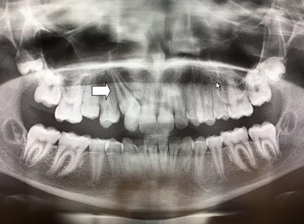 canino-incluido-maxilar-derecho