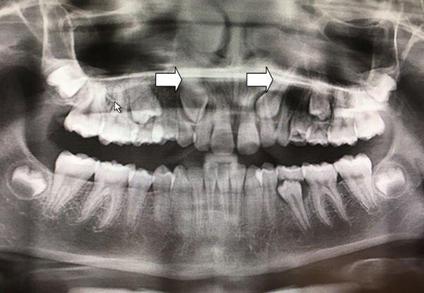 caninos-incluidos-maxilares