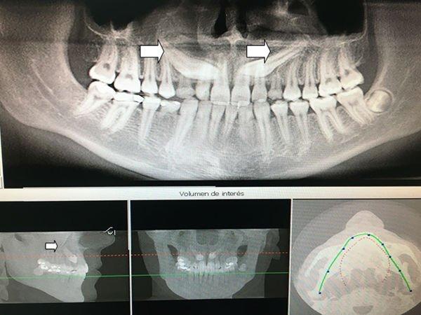 caninos-maxilares-impactados