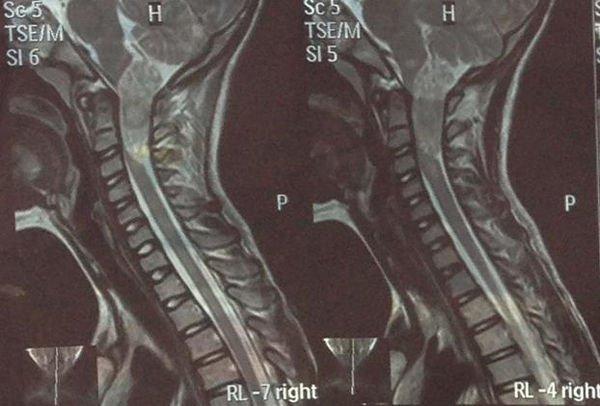 neurofibromatosis-resonancia-magnetica