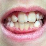 encias-inflamadas-placa-malposicion-dentaria