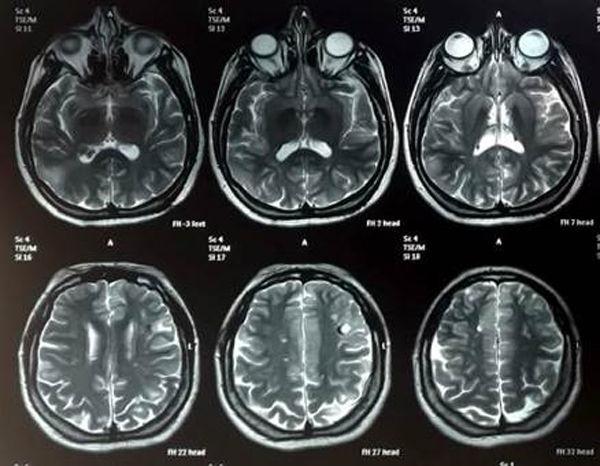 angiofibromas-esclerosis-tuberosa-resonancia-magnetica-