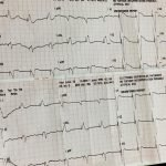 bloqueo-auriculoventricular-caso-clinico
