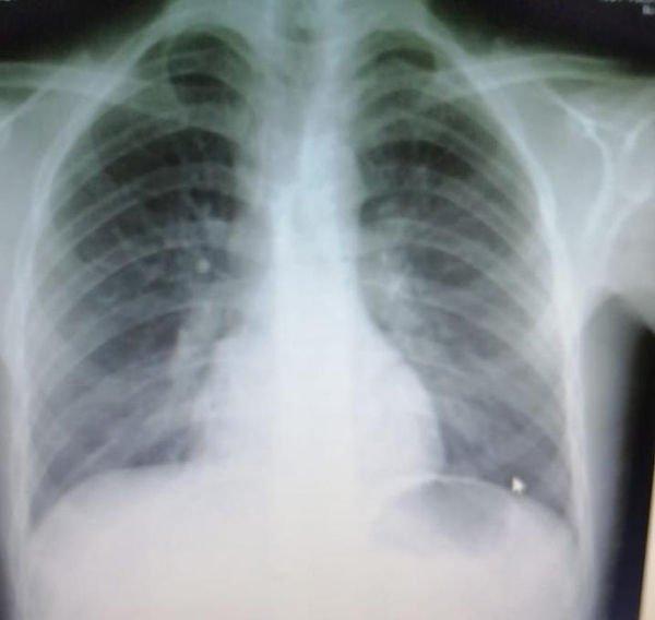 infiltrados-intersticiales-aumento-trama-vascular