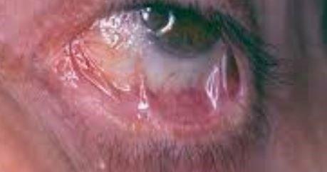 penfigoide-bridas-cicatrizales-adherencias