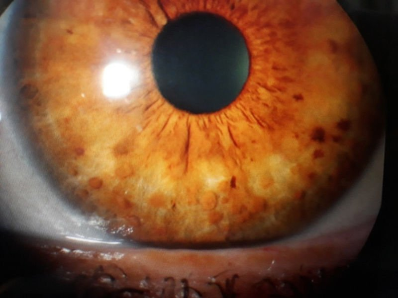 neurofibromatosis-nodulos-de-Lynch-iris