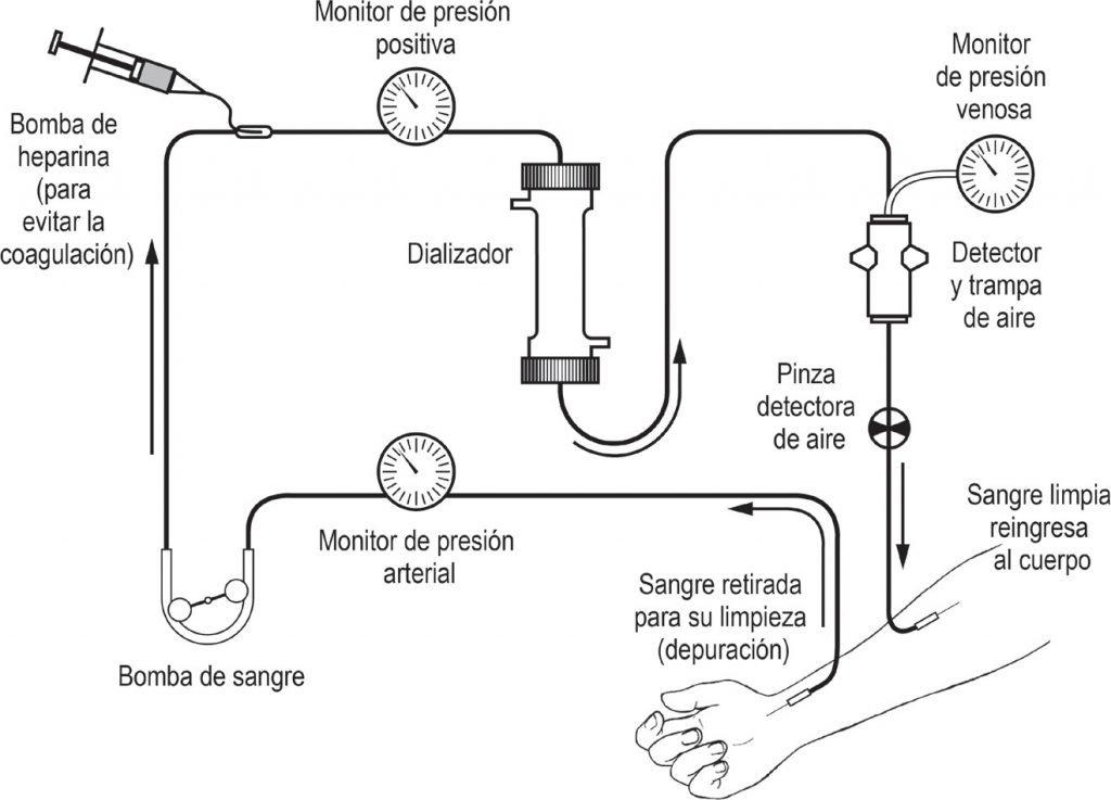 proceso-de-dialisis