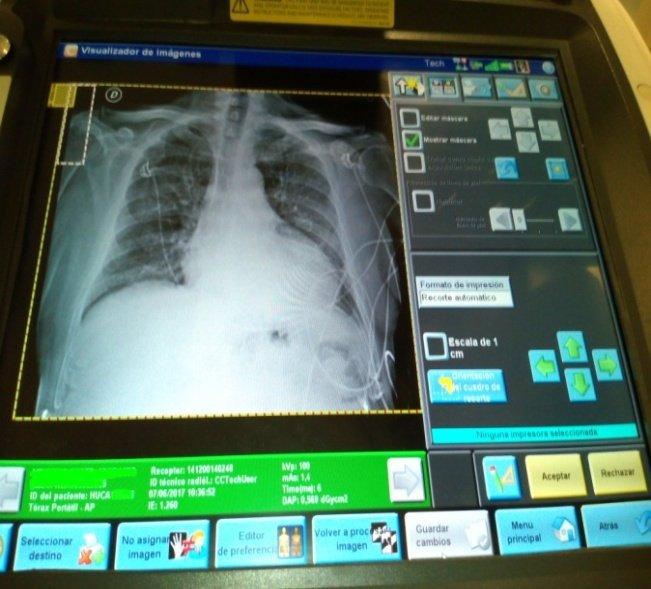 equipo-rx-portatil-pantalla-digital-ajustes