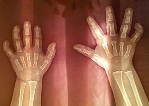 sindrome-de-Silver-Russell-radiografia
