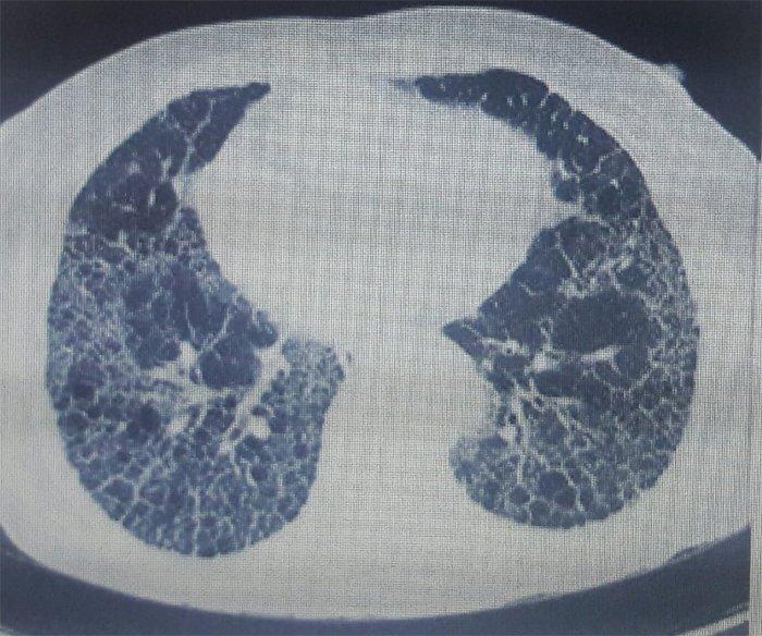 fibrosis-pulmonar-idiopatica-TAC-torax