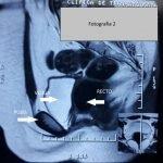 sindrome-Mayer-Rokitansky-Kuster-Hauser-ecografia