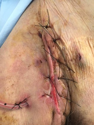 herida-quirurgica-linforragia