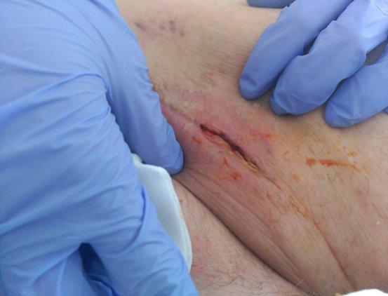 mejoria-herida-linforragia-terapia-presion-negativa