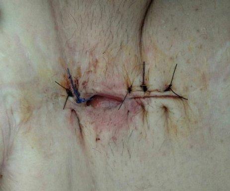 dehiscencia-herida