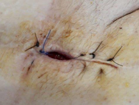 mejoria-dehiscencia-herida-TPN-terapia-presion-negativa