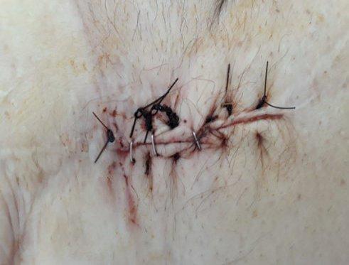 resolucion-dehiscencia-herida-TPN-terapia-presion-negativa
