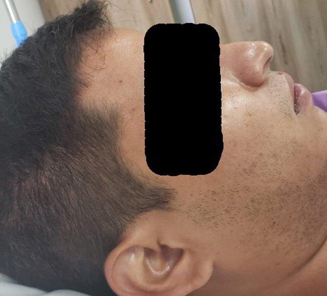 linfoma-nasal-2