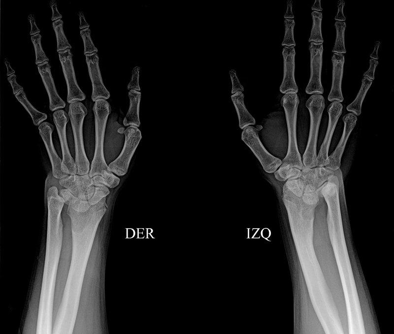 malformacion-Madelung-radiografia-anteroposterior-extremidades-superiores