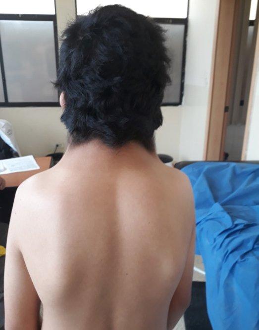 sindrome-noonan-caso-clinico