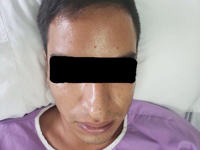 linfoma-nasal