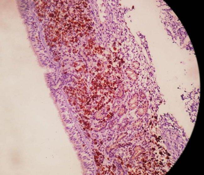 linfoma-nasal-anatomia-patologica