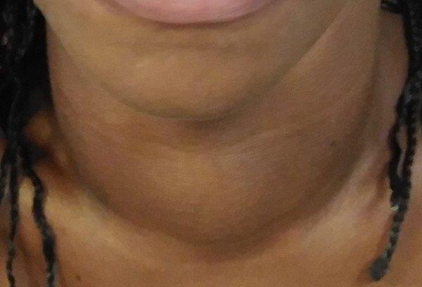 hipertiroidismo-cuello-aumento-tamaño-tiroides
