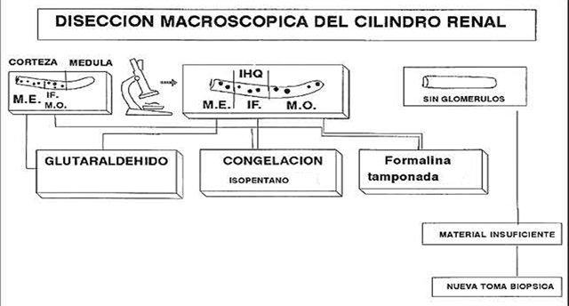 biopsia-renal-direccion-macroscopica