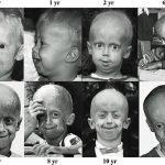 progeria-evolucion-sindrome-Hutchinson-Gilford