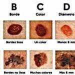 regla-ABCDE-cancer-piel