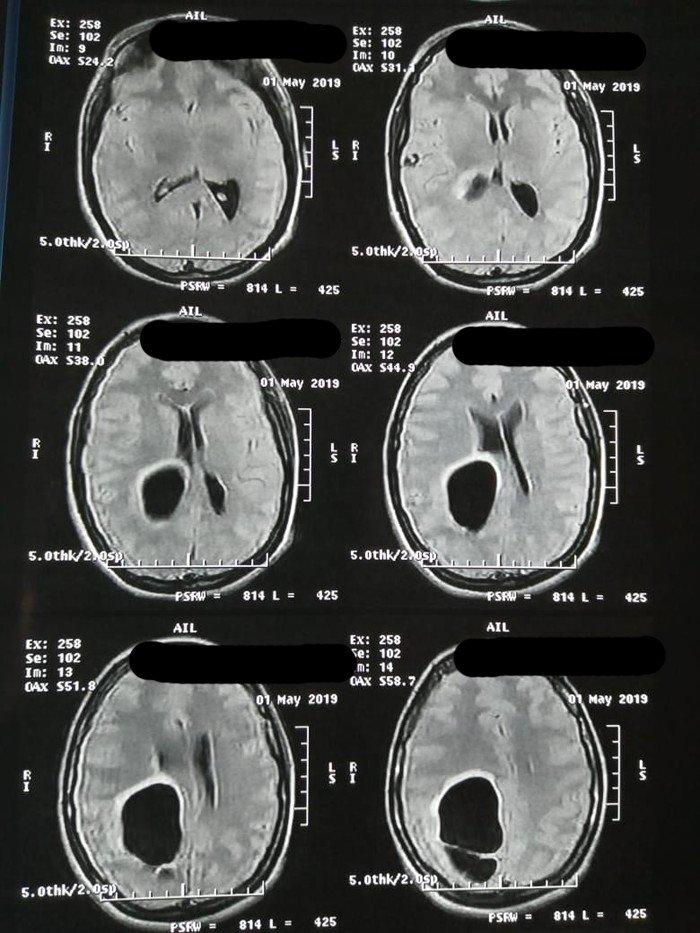 Hipertensión ocular de cisticercosa
