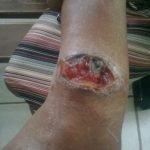 leishmaniasis-cutanea-ulcera