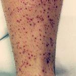 Schonlein-Henoch-lesiones-eritematoviolaceas