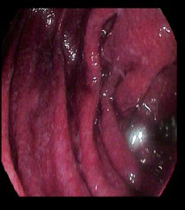 Schonlein-Henoch-lesiones-petequiales-mucosa-duodenal