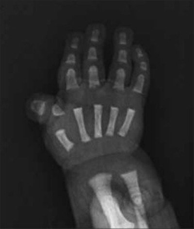 acondroplasia-radiografia