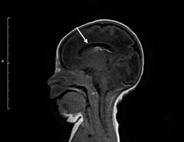 sindrome-de-De-Morsier-RMN