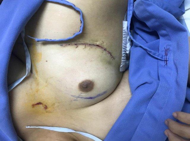 hipoplasia-unilateral-musculo-pectoral