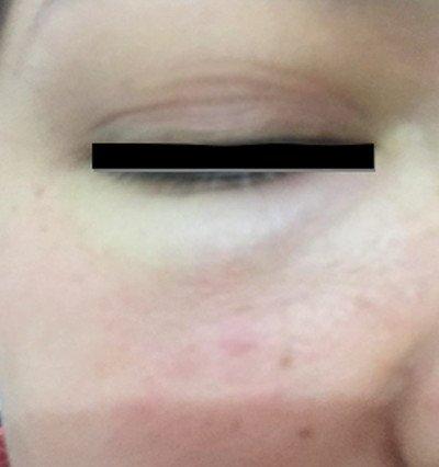 purpura-schonlein-henoch-lesiones-dermicas-faciales