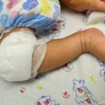 artritis-septica-neonatal-caso-clinico