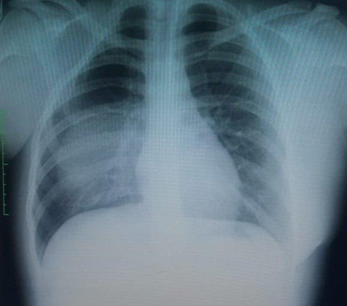 hipoplasia-costal