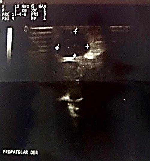 artritis-septica-ecografia