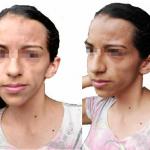 sindrome-Parry-Romberg-deformidad-facial