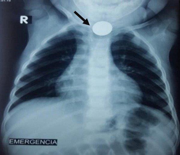 cuerpo-extrano-esofago-moneda